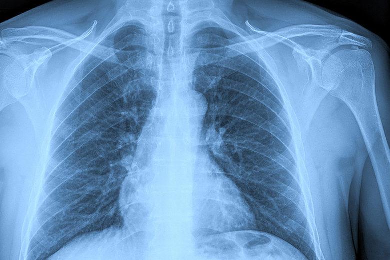 Aquifer Radiology