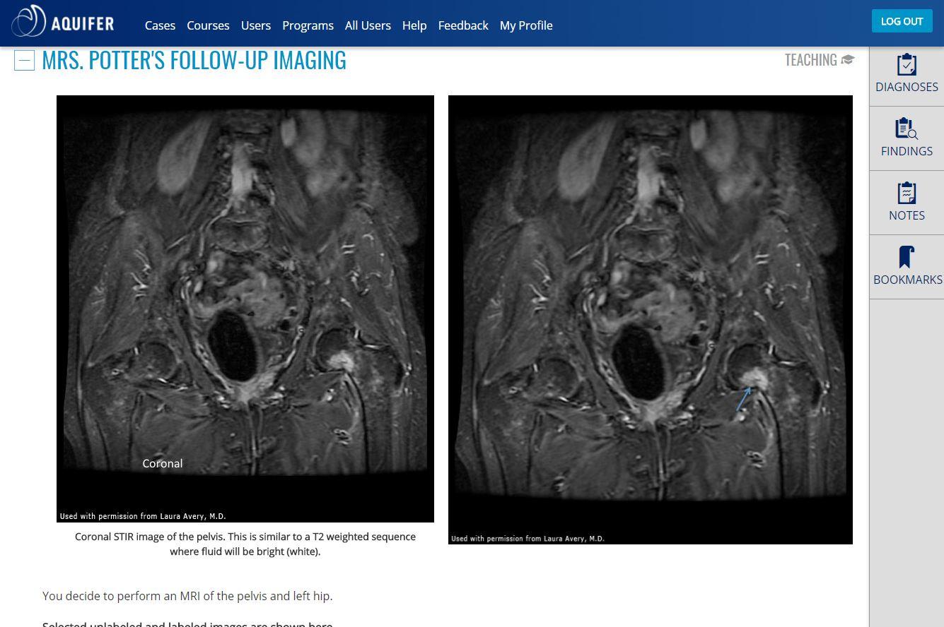 Aquifer Radiology (formerly CORE) | Case-Based Virtual